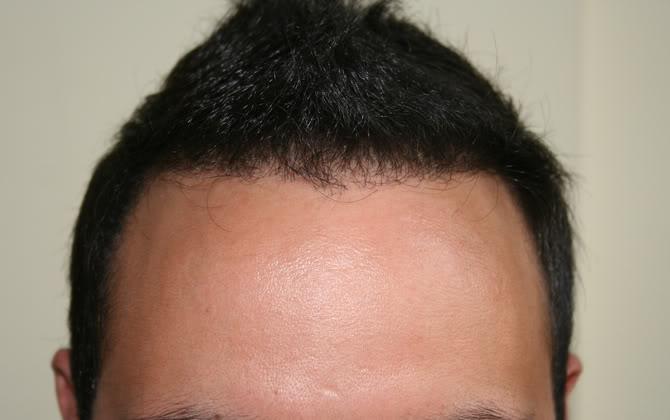 best-fue-hair-transplant (7)
