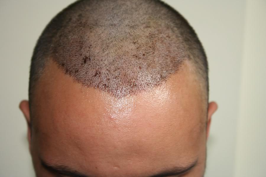 best-fue-hair-transplant (8)