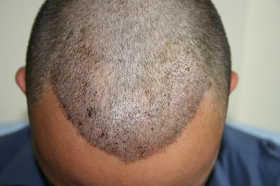 best-fue-hair-transplant (9)