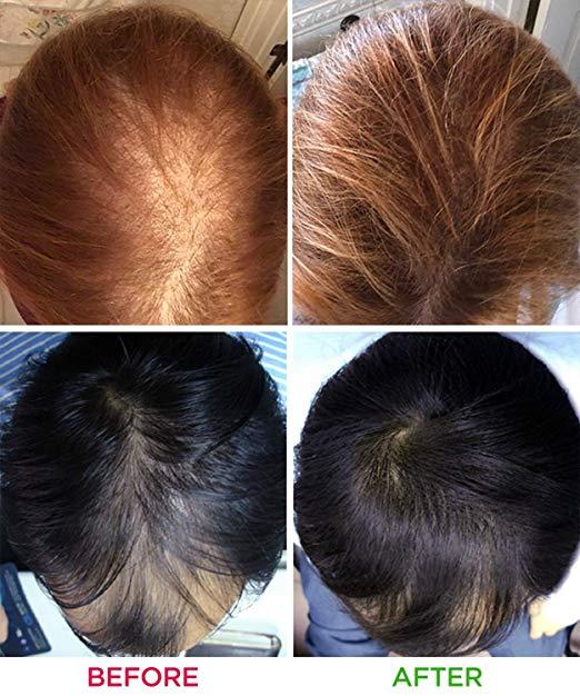 hair-laser-growth (1)