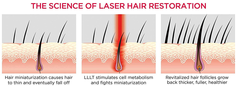 hair-laser-growth (6)