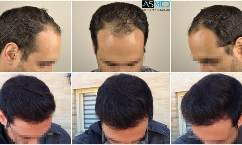hair-transplant-in-turkey-acibadem (1)