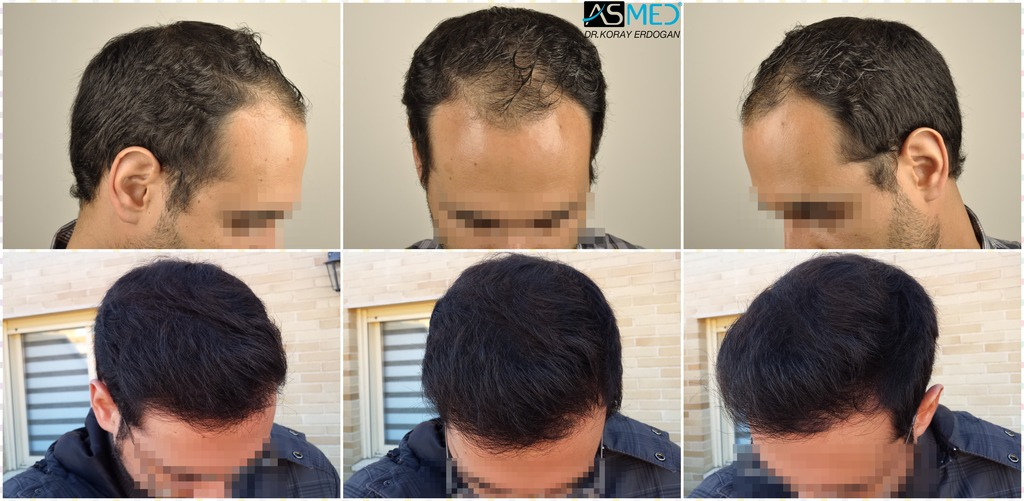 ASMED HAIR TRANSPLANT-3600 GRAFTS