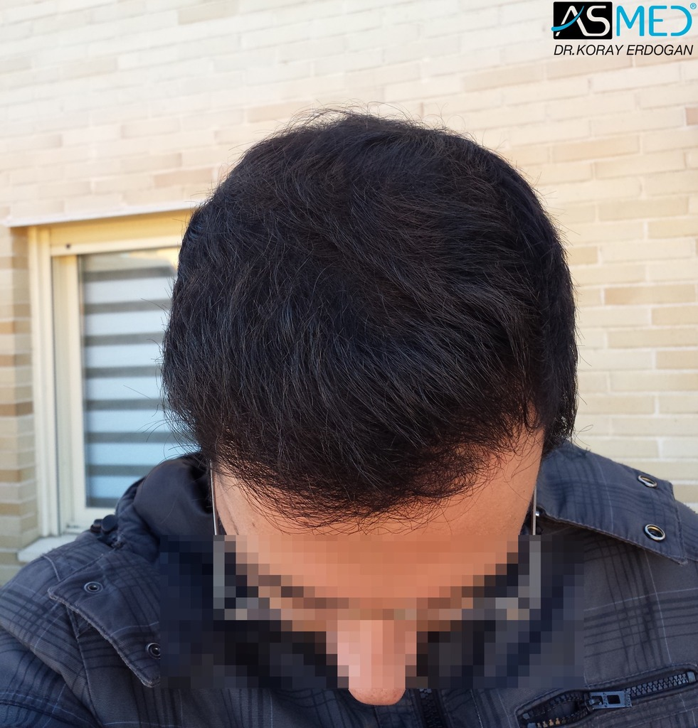 hair-transplant-in-turkey-acibadem (10)