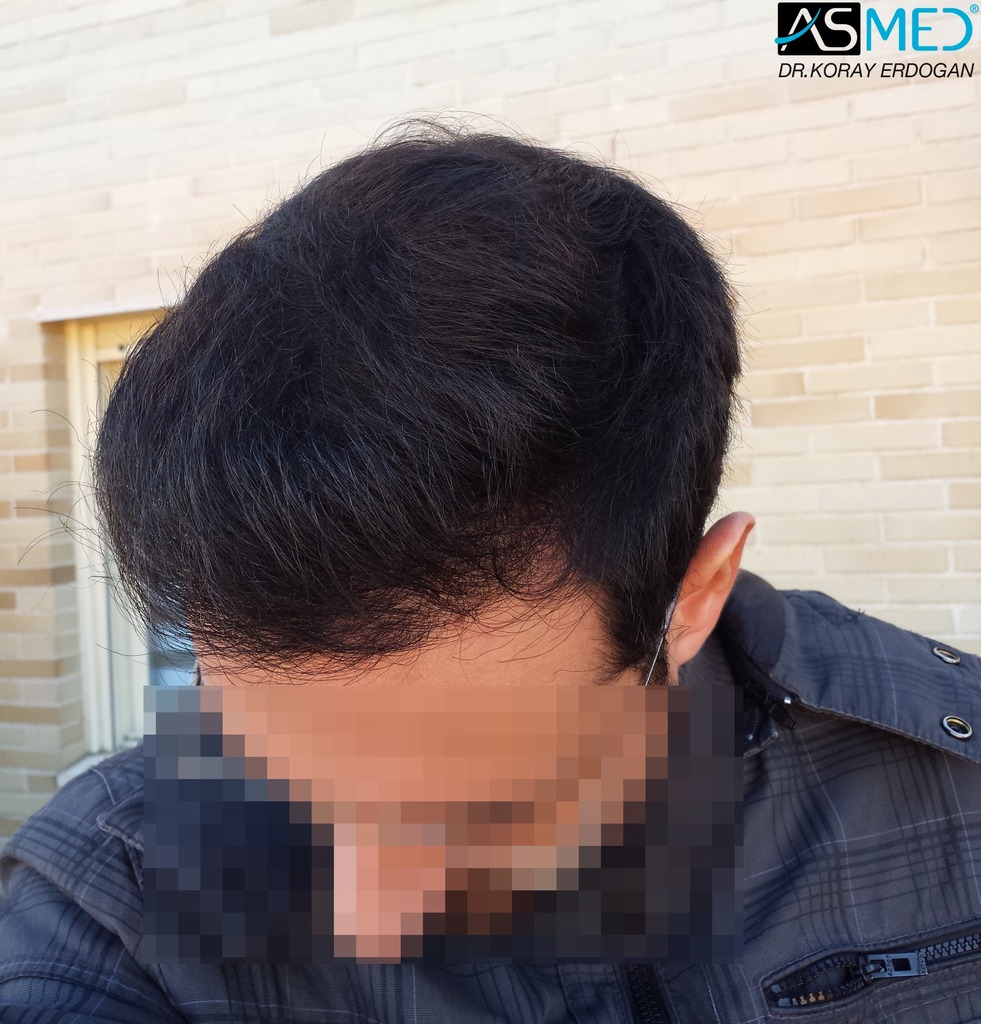 hair-transplant-in-turkey-acibadem (11)