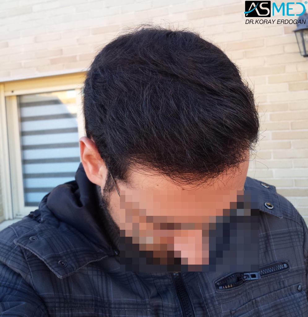 hair-transplant-in-turkey-acibadem (12)