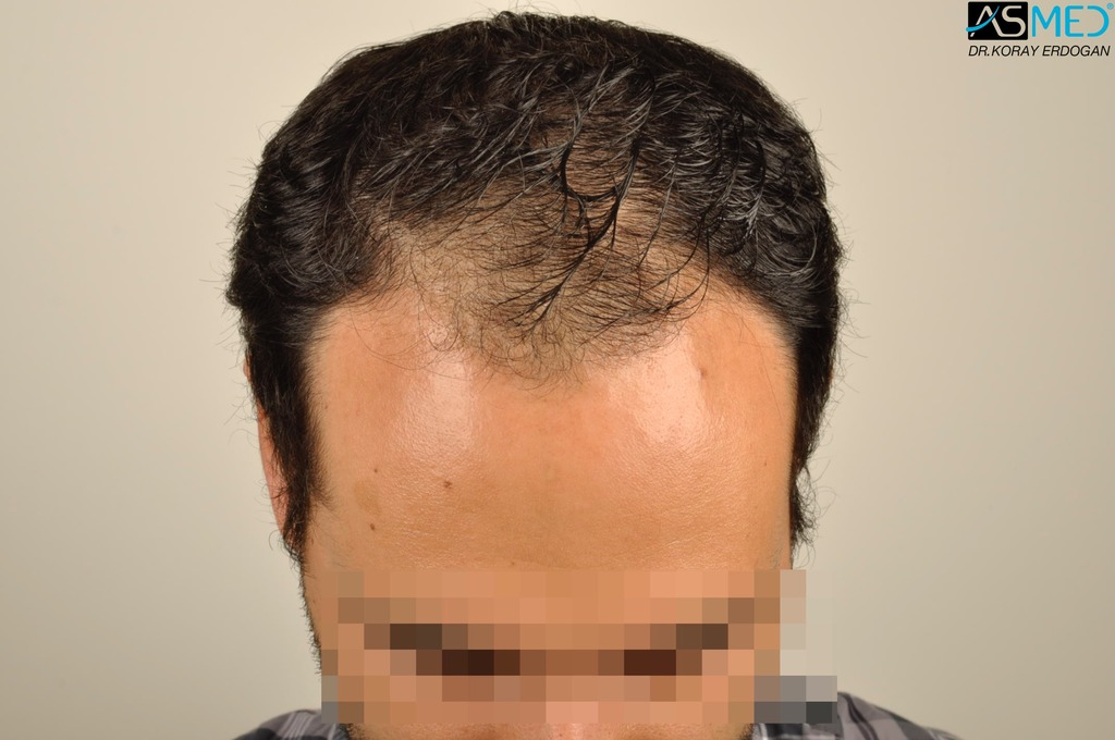 hair-transplant-in-turkey-acibadem (2)
