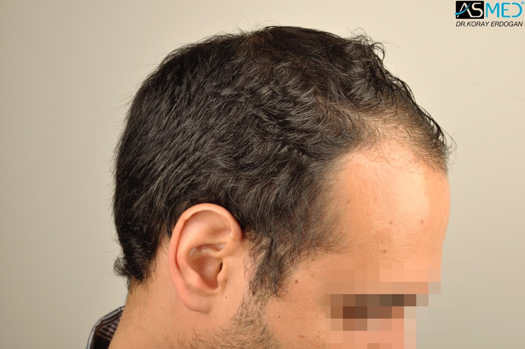 hair-transplant-in-turkey-acibadem (3)