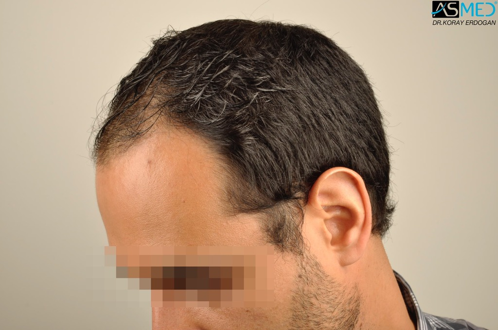 hair-transplant-in-turkey-acibadem (4)