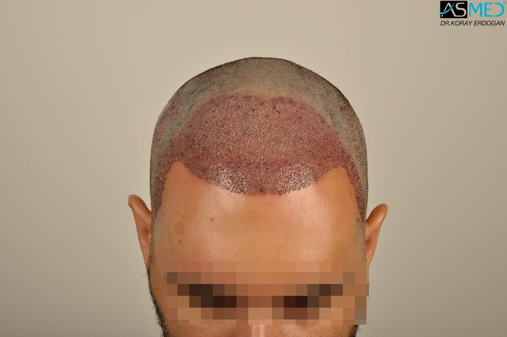 hair-transplant-in-turkey-acibadem (5)