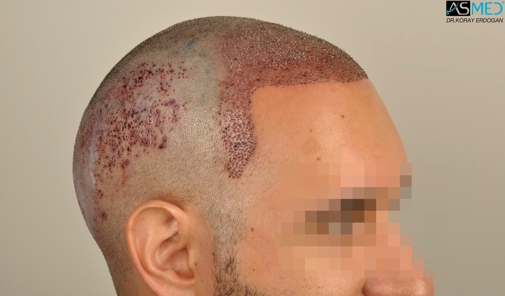 hair-transplant-in-turkey-acibadem (6)