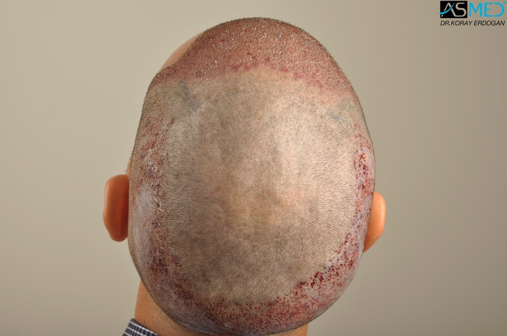 hair-transplant-in-turkey-acibadem (8)