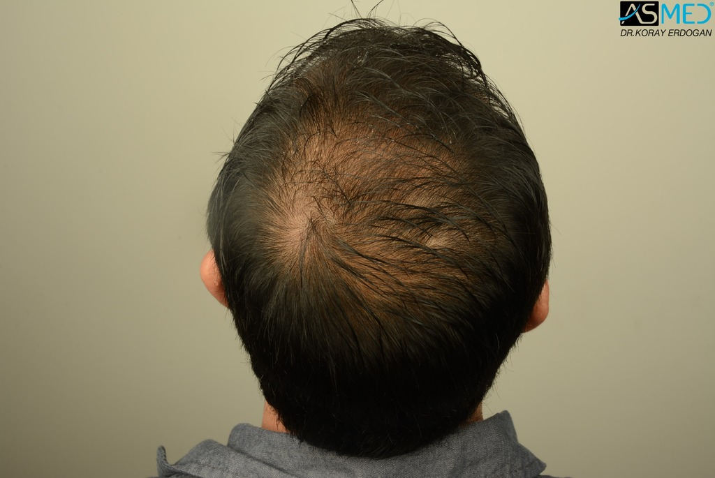 hair-transplant-in-turkey-acibadem (9)