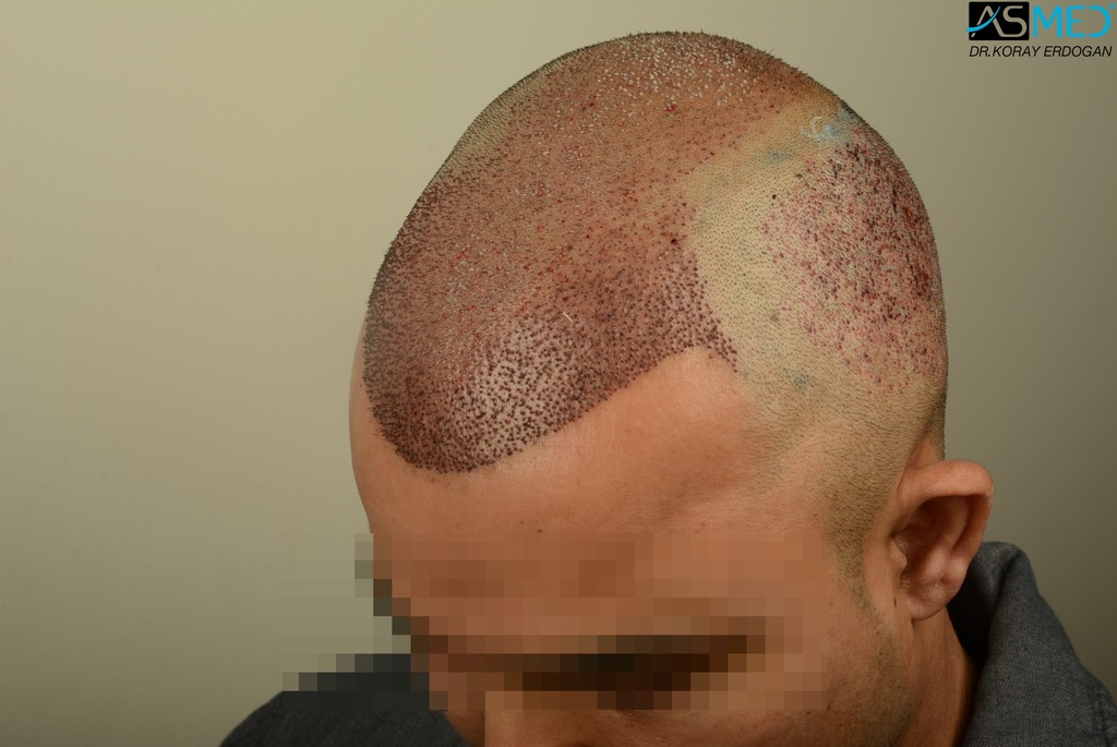 hair-transplant-in-turkey-asmed (10)