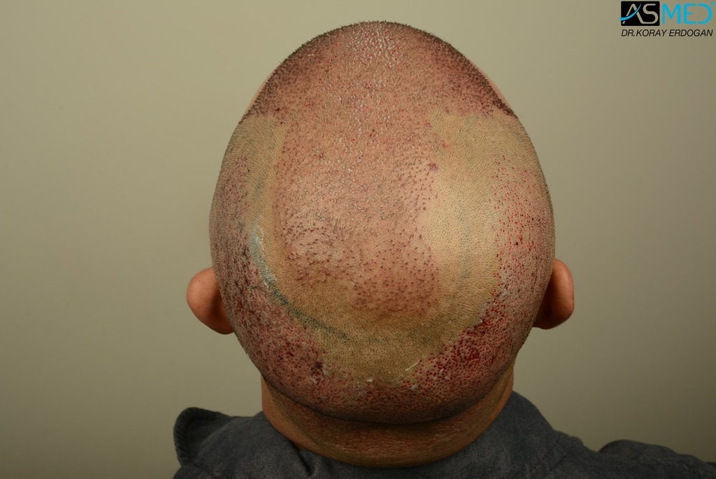 hair-transplant-in-turkey-asmed (11)