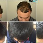 hair-transplant-in-turkey-asmed (3)