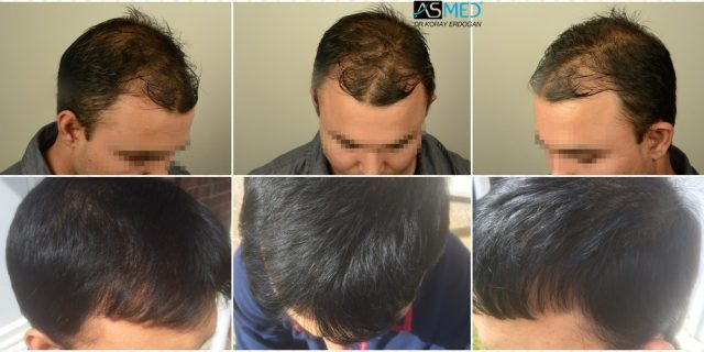 hair-transplant-in-turkey-asmed (3)