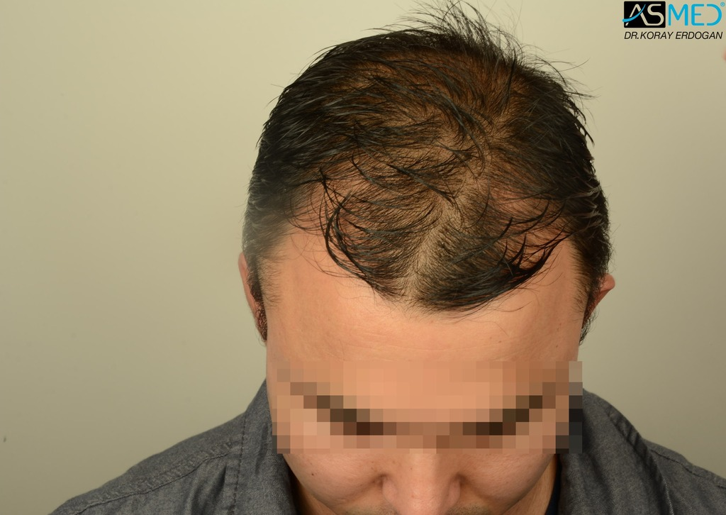 hair-transplant-in-turkey-asmed (4)