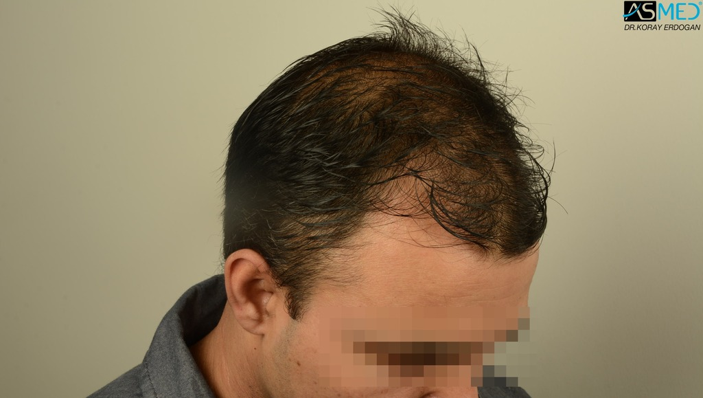 hair-transplant-in-turkey-asmed (5)