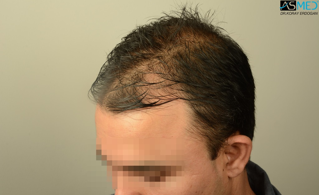 hair-transplant-in-turkey-asmed (6)