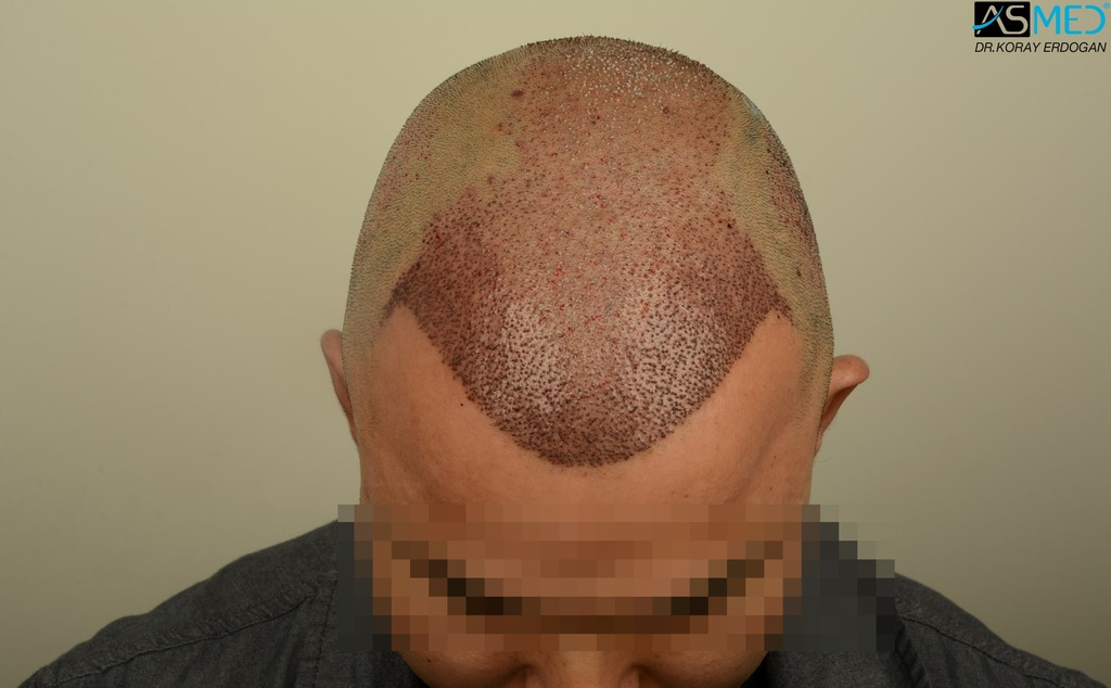 hair-transplant-in-turkey-asmed (8)