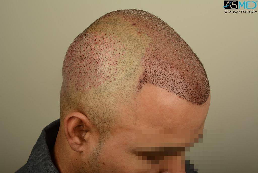 hair-transplant-in-turkey-asmed (9)