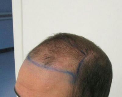 dr-kul-hair-transplant (1)