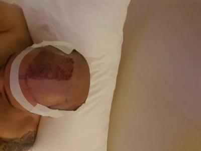 dr-kul-hair-transplant (10)