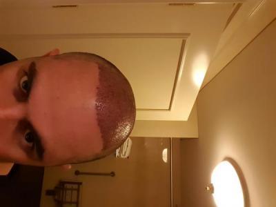 dr-kul-hair-transplant (12)