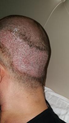 dr-kul-hair-transplant (13)