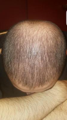 dr-kul-hair-transplant (16)