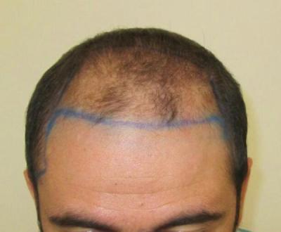 dr-kul-hair-transplant (2)