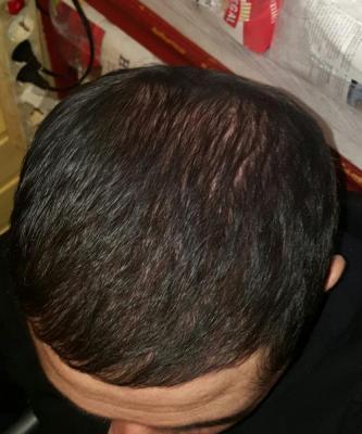 dr-kul-hair-transplant (26)