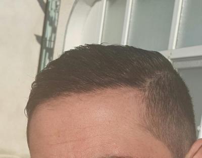 dr-kul-hair-transplant (27)