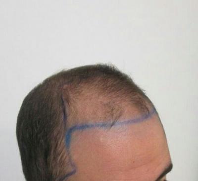 dr-kul-hair-transplant (3)