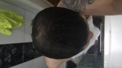 dr-kul-hair-transplant (30)