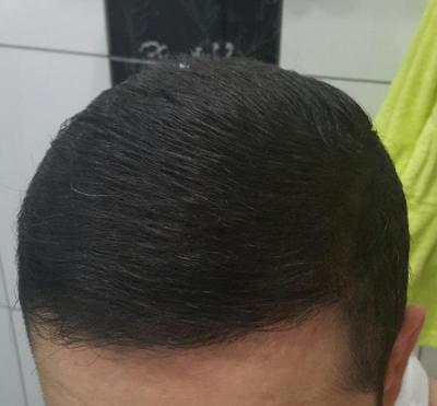 dr-kul-hair-transplant (31)