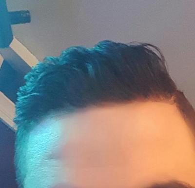 dr-kul-hair-transplant (37)
