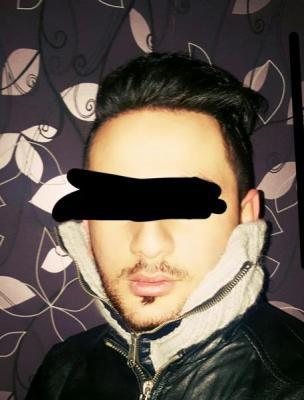 dr-kul-hair-transplant (39)
