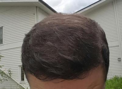 dr-kul-hair-transplant (40)