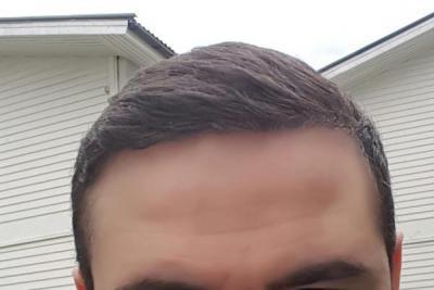 dr-kul-hair-transplant (41)