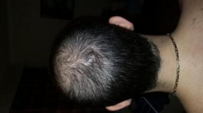 dr-kul-hair-transplant (8)