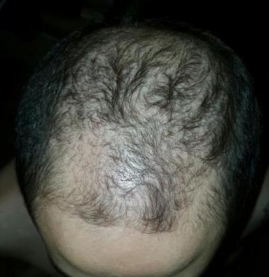dr-kul-hair-transplant (9)