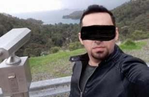 hair-transplant-antalya (24)