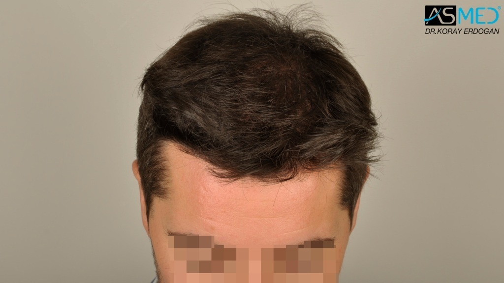 hair-transplant-turkey-asmed