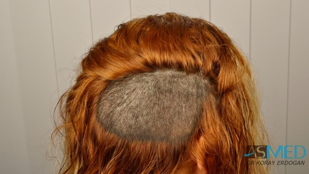 women-hair-transplant (3)