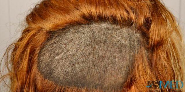 women-hair-transplant (4)