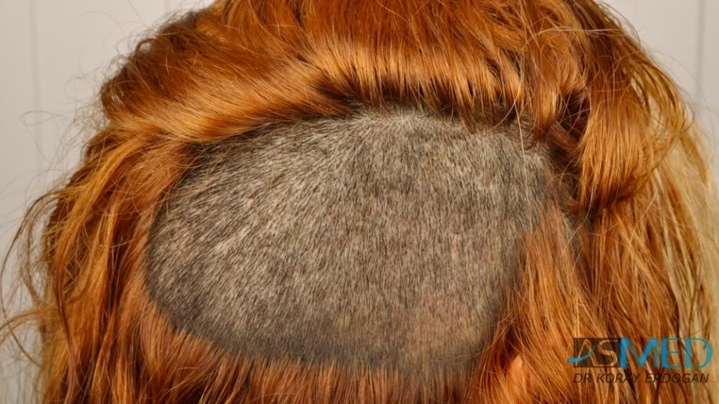 ASMED-HAIR TRANSPLANT IN WOMEN-1205 GRAFTS