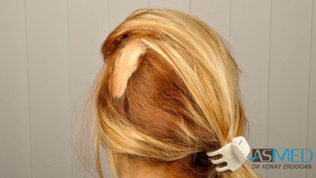 women-hair-transplant (5)