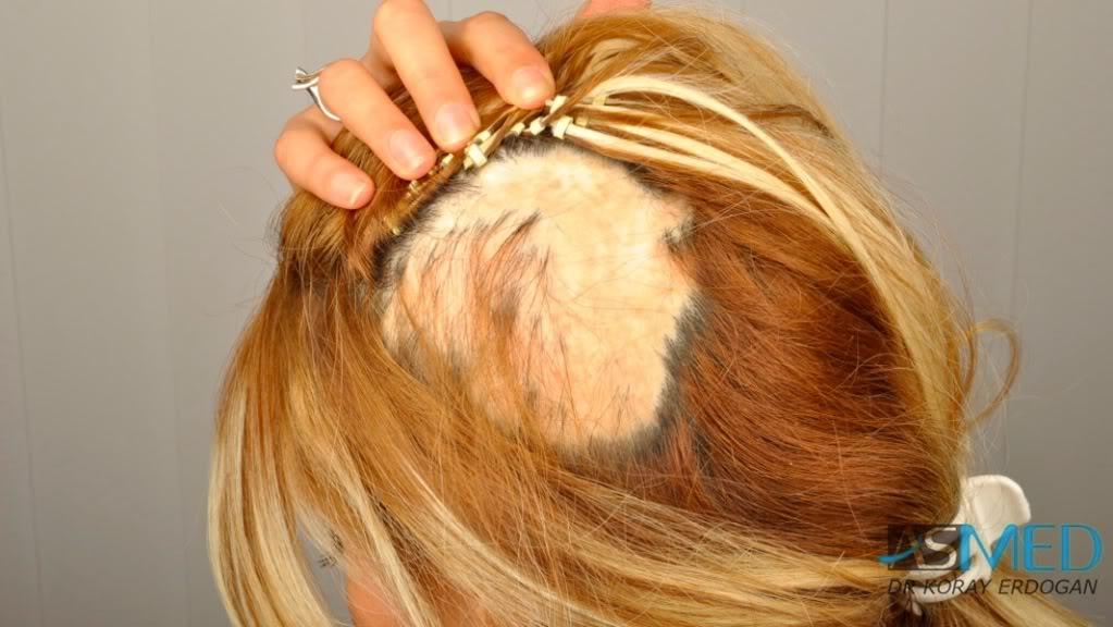 women-hair-transplant (6)